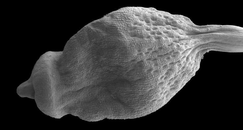 "A spore capsule of Delongia glacialis showing the ""spongy"" neck. Although the stomata are fairly exposed in this picture they become much more sunken when the capsule is dry"