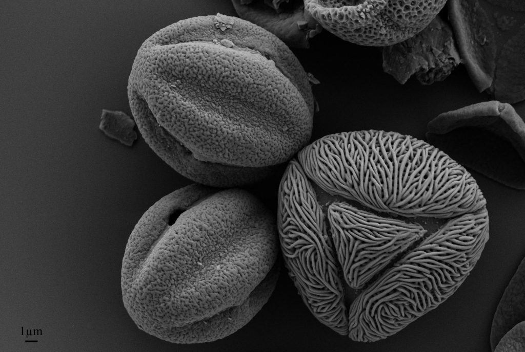 SEM of Pollen Extracted from Nepalese Honey